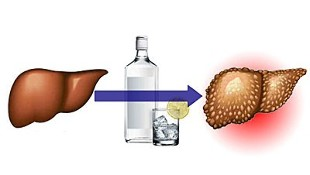 effects of alcohol on the liver